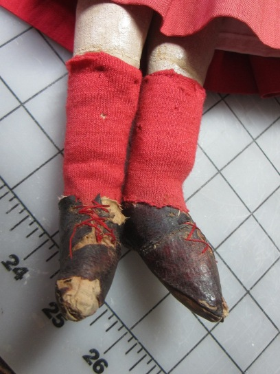 "Red ""socks"" and leather shoes, a previous ankle repair."